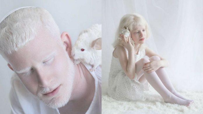 les causes et les symptômes de l'albinisme, une maladie qui touche aussi la sphère émotionnelle